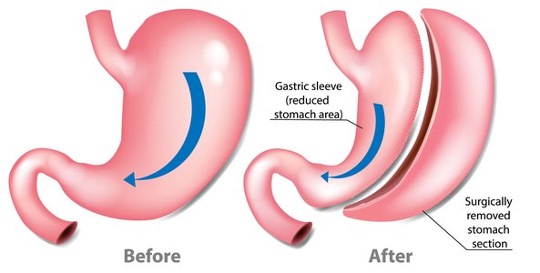 What are the benefits of bariatric surgery?