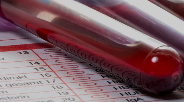 Know the Benefits of the live blood analysis