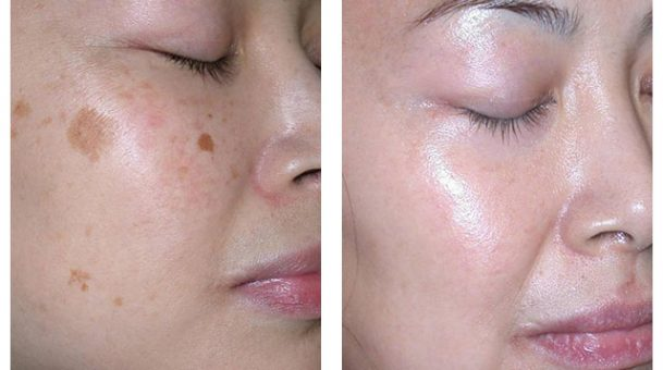 Find the best clinic to treat your skin problem